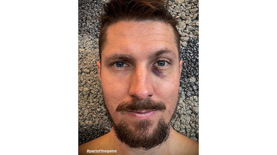 Marcel Hirscher holt sich blaues Auge